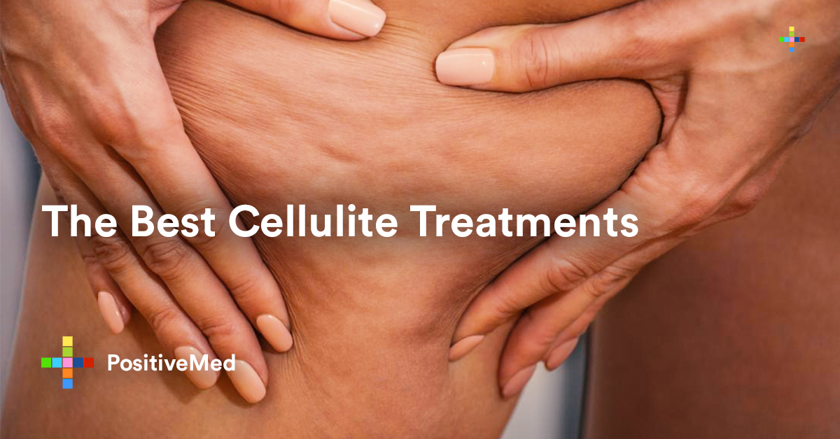 The Best Cellulite Treatments