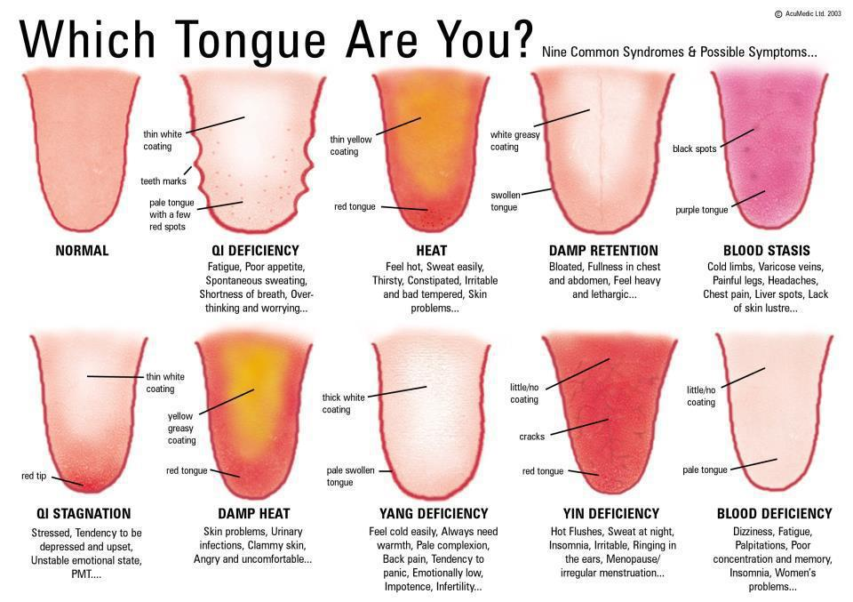What Your Tongue Can Tell You About Your Body