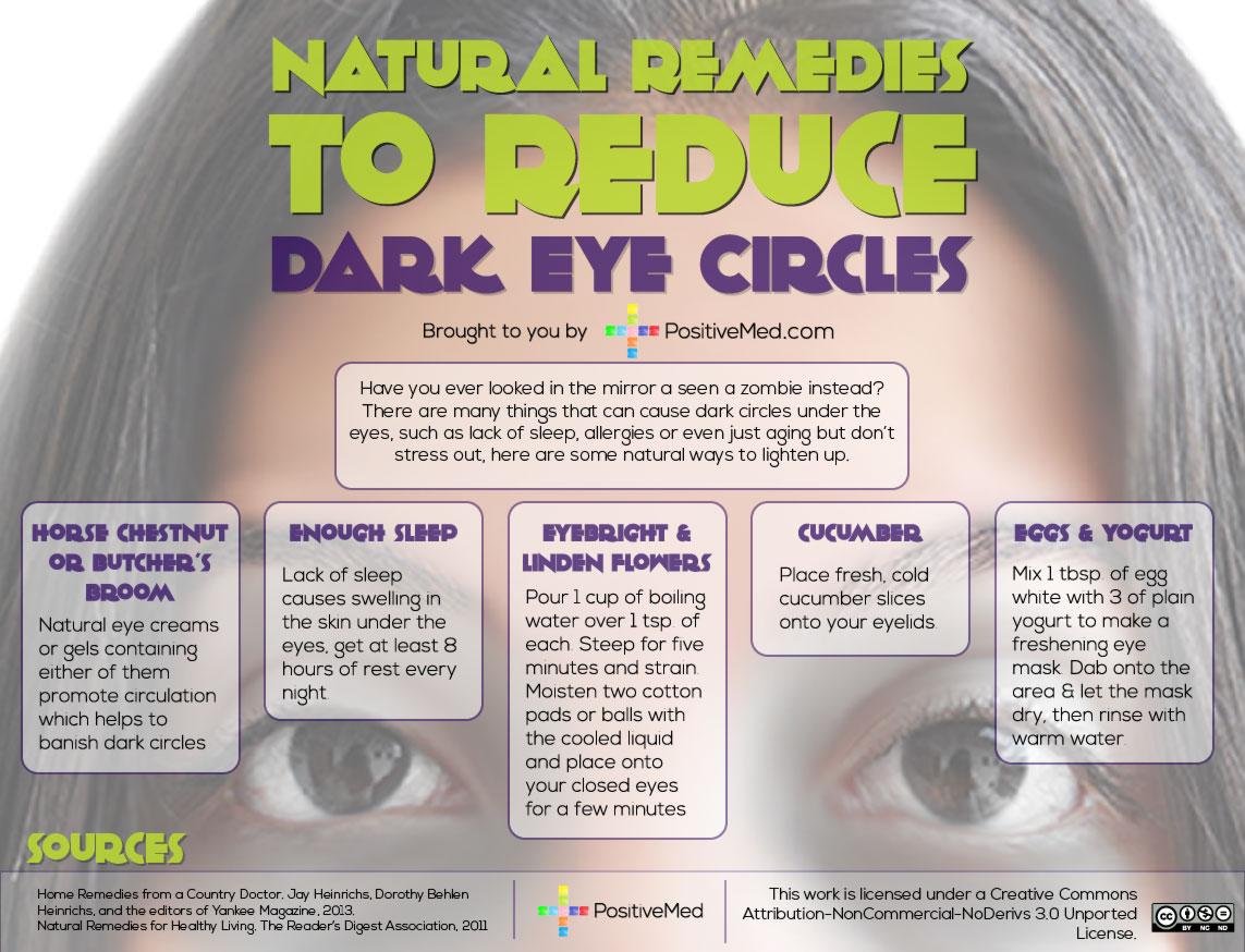 5 Natural Remedies to Reduce Dark Eye Circles