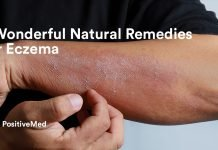 6 Wonderful Natural Remedies For Eczema.