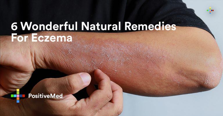 6 Wonderful Natural Remedies For Eczema
