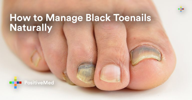 How to Manage Black Toenails Naturally