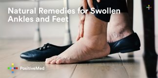 Natural Remedies for Swollen Ankles and Feet.