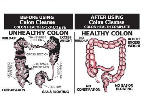 What You Need to Know About Colon Cleansing
