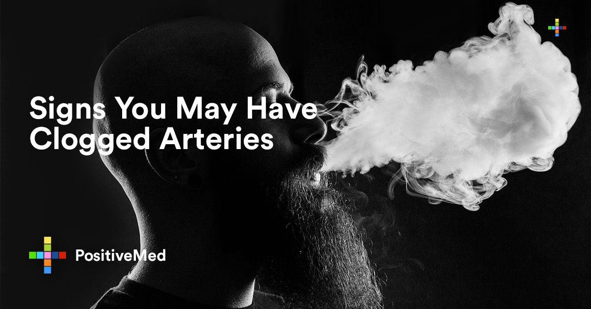 Signs You May Have Clogged Arteries