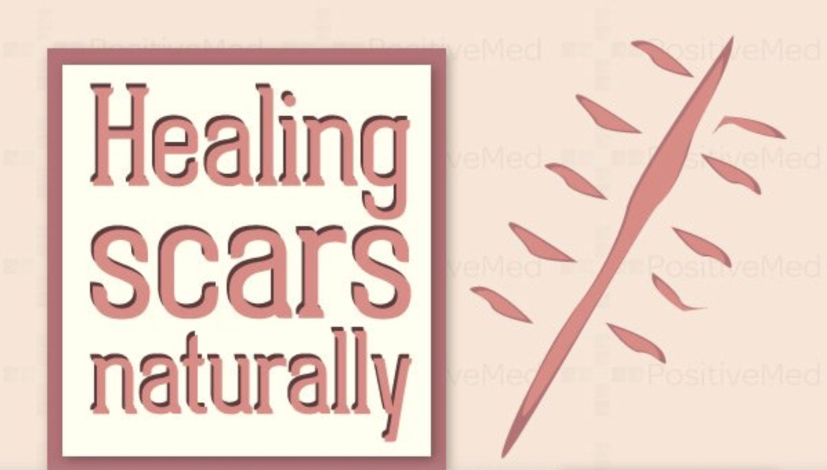 Healing Scars Naturally: Which Remedies Work Best?