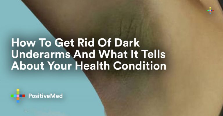 How To Get Rid Of Dark Underarms And What It Tells About Your Health Condition