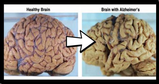 This Vitamin Deficiency Increases The Risk of Alzheimer's or Dementia