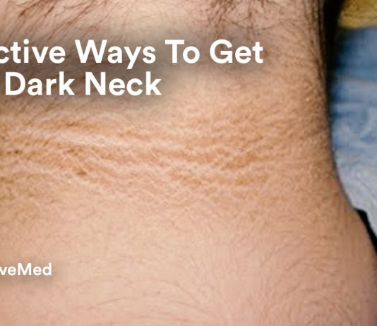 2 Effective Ways To Get Rid of Dark Neck.