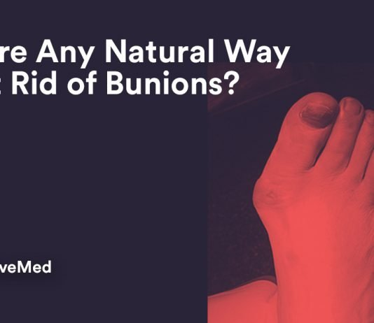 Is There Any Natural Way to get Rid of Bunions