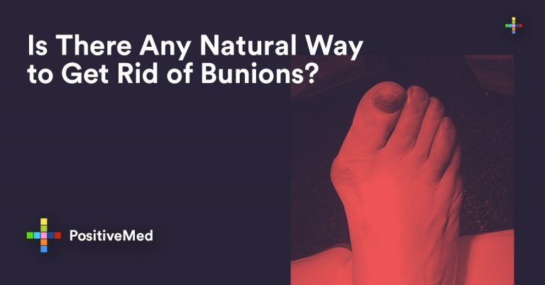 Is There Any Natural Way to Get Rid of Bunions?