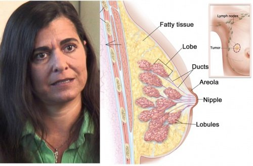 Here Is How This Woman Cured Her Breast Cancer
