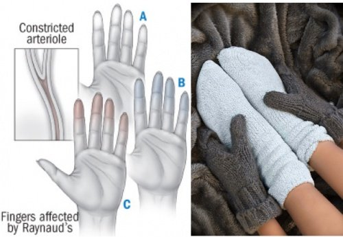 The Warning Signs Your Cold Hands and Feet Are Sending