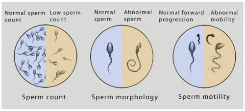 Are You Accidentally Lowering Your Sperm Count? Find Out Now!