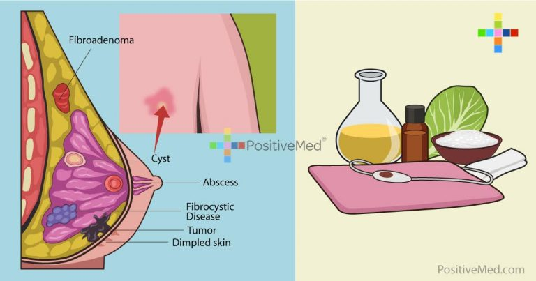 6 Natural Remedies To Get Rid Of Breast Cysts
