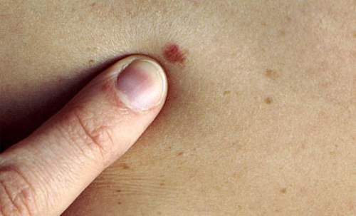 If Your Mole Placed On One Of These 7 Body Parts – You Have Very Interesting Personality Quirks