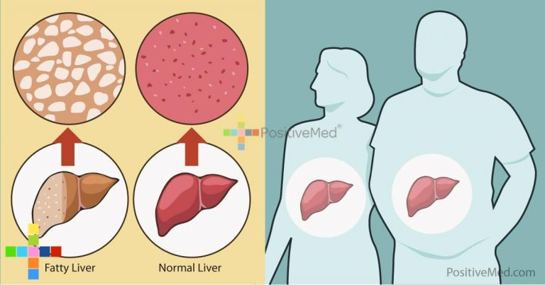 Many People Unknowingly Have Non-Alcoholic Fatty Liver Disease. Are You One of Them?