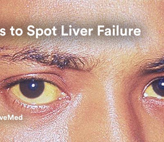 7 Ways to Spot Liver Failure