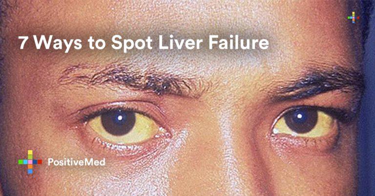 7 Ways to Spot Liver Failure