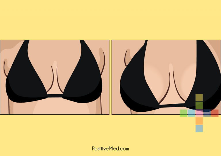 Get Breast Enlargement Without Surgery