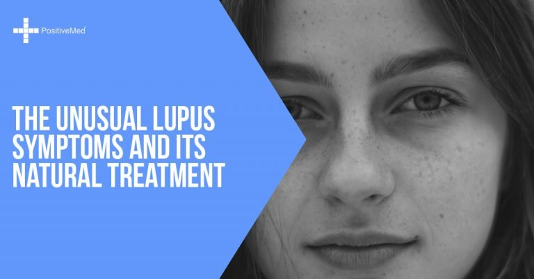 The Unusual Lupus Symptoms and Its Natural Treatment