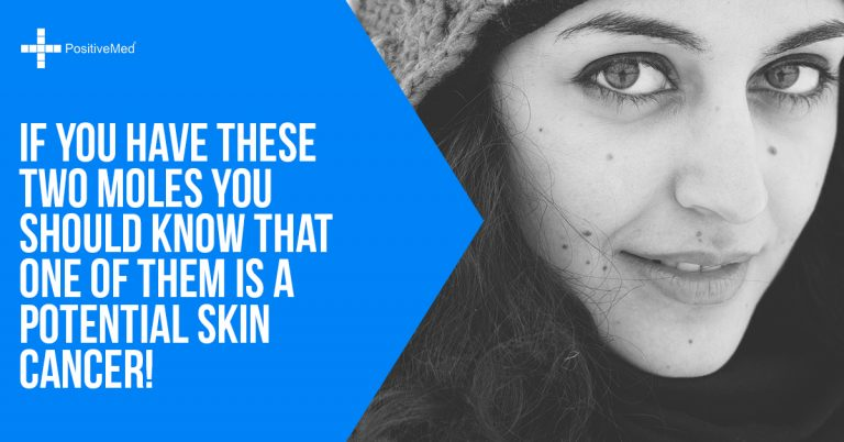 If You Have These Two Moles You Should Know That One of Them Is a Potential Skin Cancer!