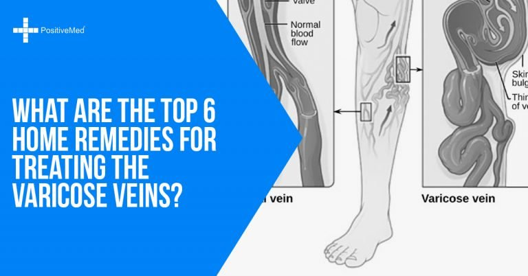 What are the Top 6 Home Remedies for Treating the Varicose Veins?