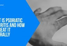What Is Psoriatic Arthritis and How To Treat It Naturally