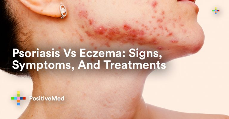 Psoriasis Vs Eczema: Signs, Symptoms, And Treatments