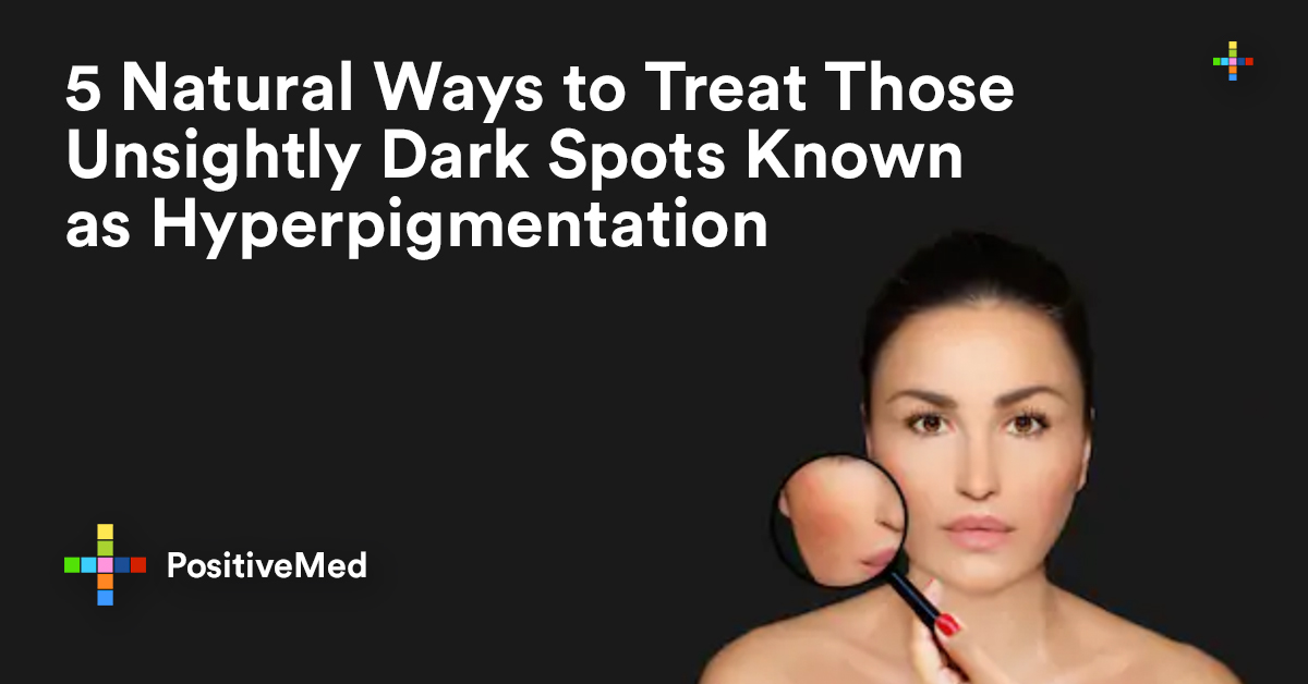 5 Natural Ways to Treat Those Unsightly Dark Spots Known as Hyperpigmentation