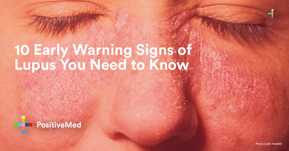10 Early Warning Signs of Lupus You Need to Know