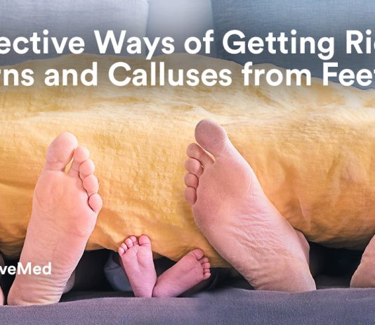 20 Effective Ways of Getting Rid of Corns and Calluses from Feet