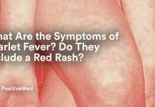 What Are the Symptoms of Scarlet Fever Do They Include a Red Rash