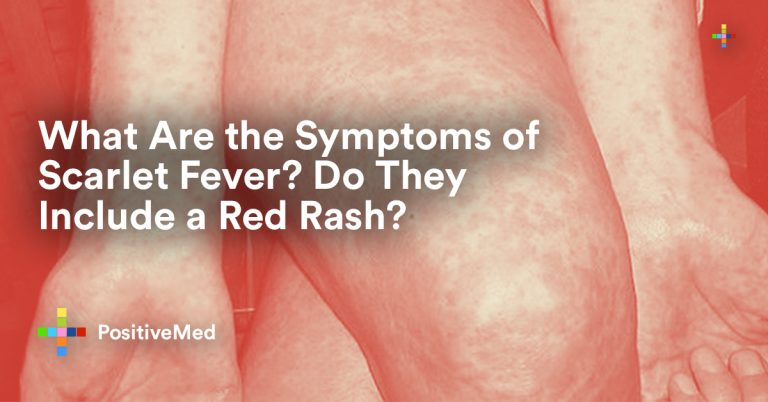 What Are the Symptoms of Scarlet Fever? Do They Include a Red Rash?