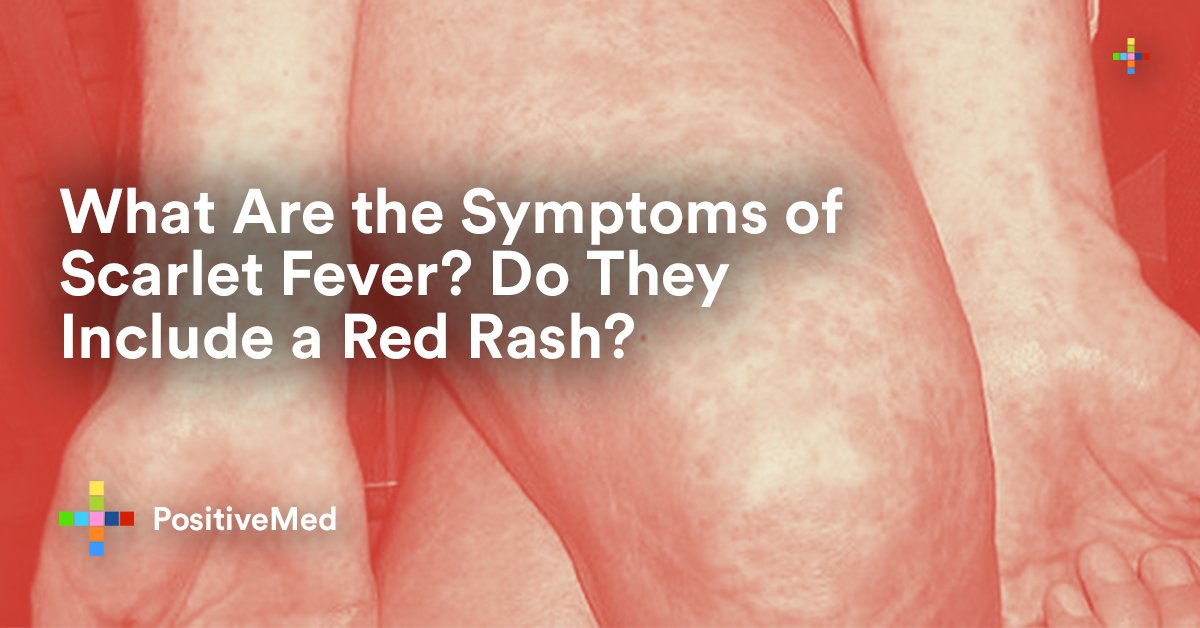 What Are the Symptoms of Scarlet Fever Do They Include a ...