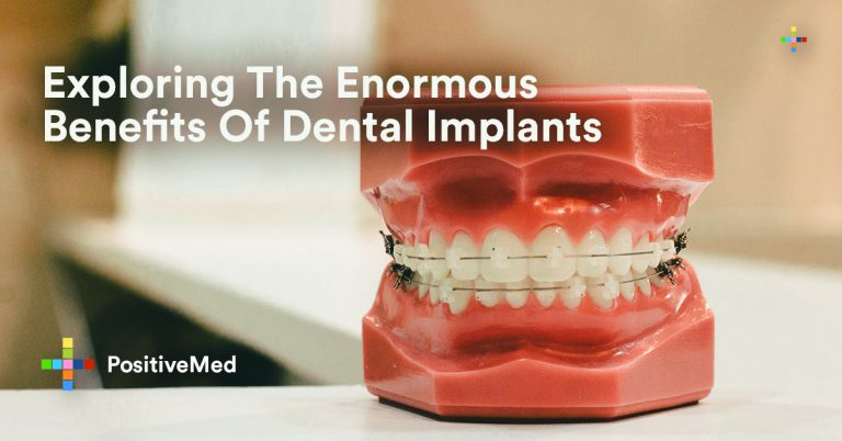 Exploring The Enormous Benefits Of Dental Implants