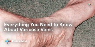 Everything You Need to Know About Varicose Veins