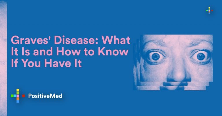 Telling Signs of Graves' Disease