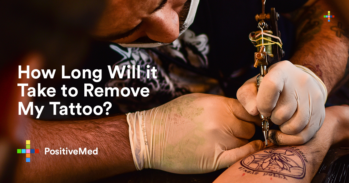 How Long Will it Take to Remove My Tattoo.