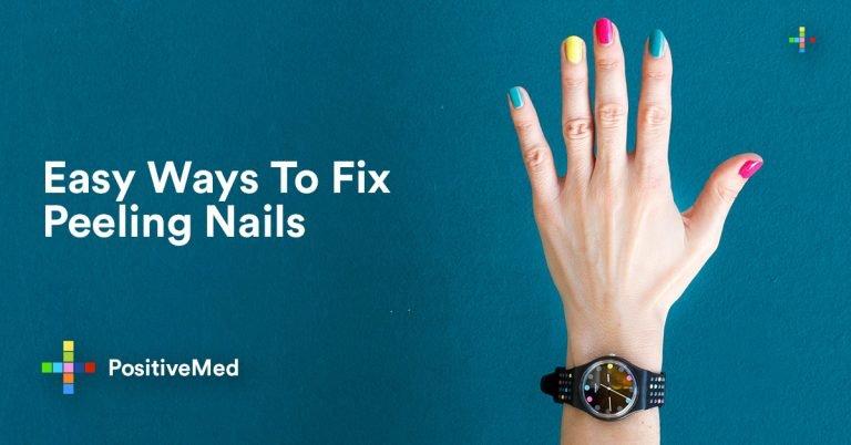 Easy Ways to Fix Peeling Nails