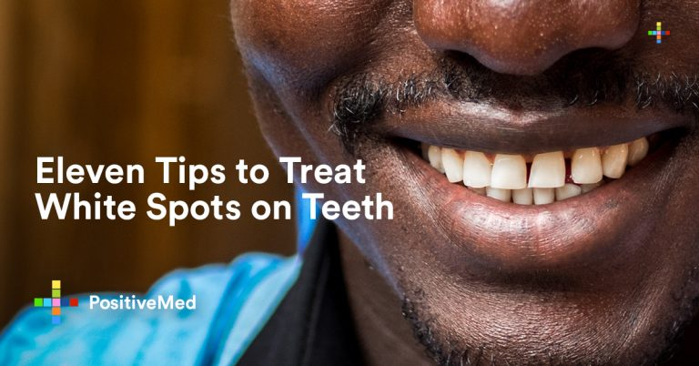 11 Tips to Treat White Spots on Teeth