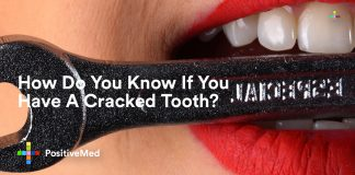 How Do You Know If You Have A Cracked Tooth