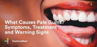 What Causes Pale Gums Symptoms, Treatment and Warning Signs