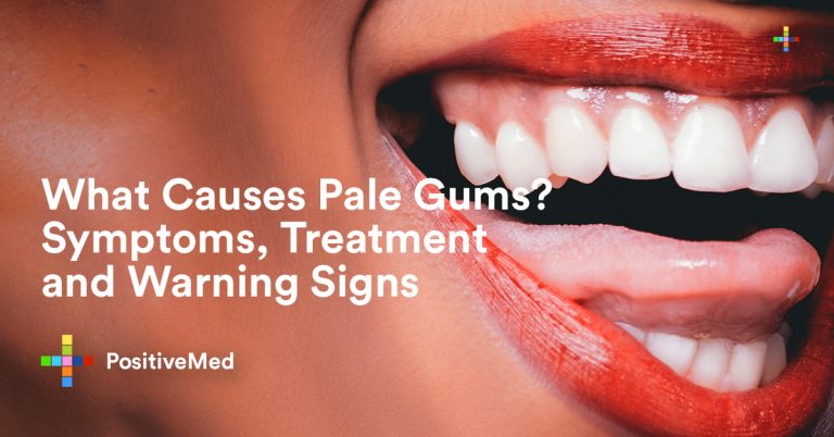 What Causes Pale Gums? Symptoms, Treatment and Warning Signs