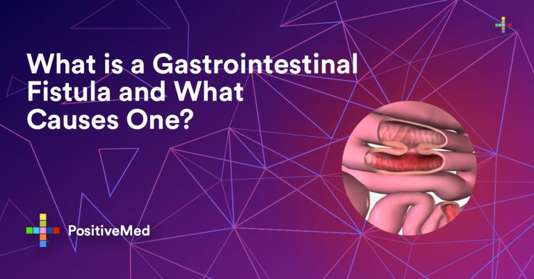 What is a Gastrointestinal Fistula and What Causes One?