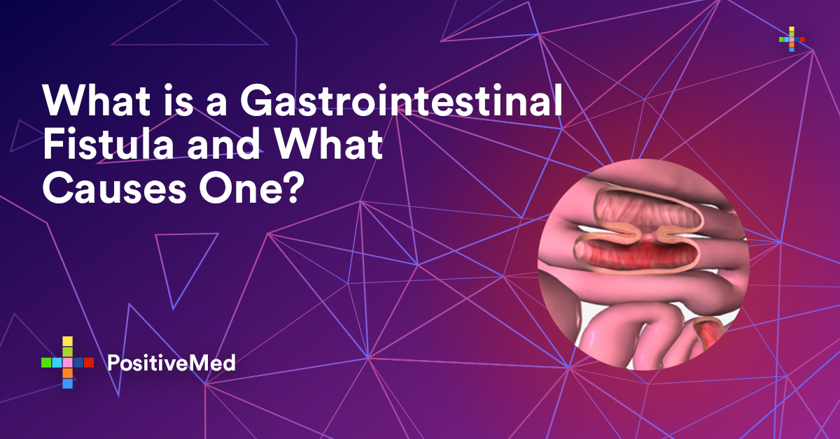 What is a Gastrointestinal Fistula and What Causes One