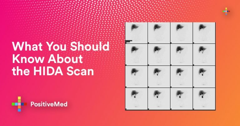 What You Should Know About the HIDA Scan