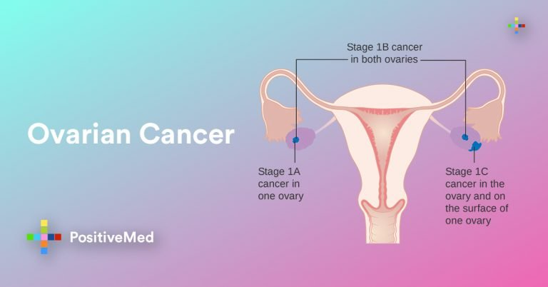 Ovarian Cancer: All You Need To Know- Symptoms and Treatments