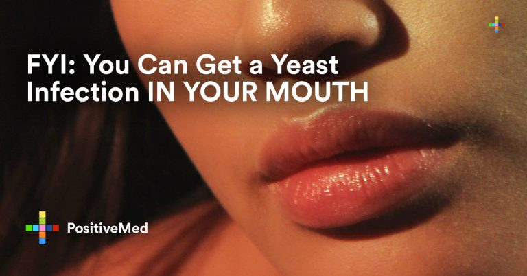 Can You Get a Yeast Infection in Your Mouth?
