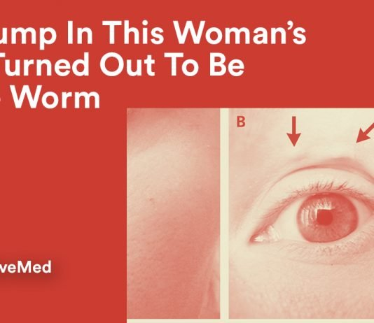 The Lump In This Woman's Face Turned Out To Be A Liveworm